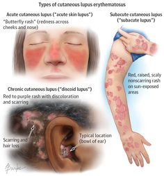"Cutaneous lupus erythematosus (CLE) is lupus affecting the skin. In this autoimmune disease, the body's immune system attacks healthy skin. There are 3 main types: (1) Acute cutaneous lupus (""acute skin lupus""); (2) Subacute cutaneous lupus (""subacute lupus""); and (3) Chronic cutaneous lupus..."
