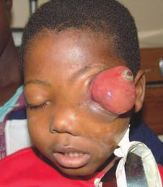 Untreated retinoblastoma (yes, that used to be the eye).