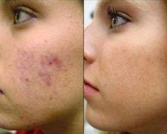 máscaras faciais caseiras para pele com manchas capa