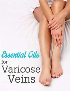 Exercises Varicose Veins | varicose-veins.jpg