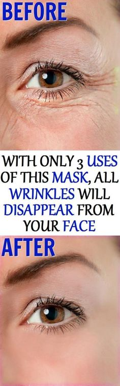 In today's health article, we are going to show you, how to make a magical mask, that will support you in erasing all kinds of wrinkles and dark spots from your face, with only 3 uses! You don't ne…