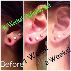 All natural defining gel can shrink gauged ears too! Plant based,  organic, and non GMO. Order at ericksonwraps.com :)