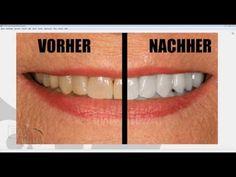 Gimp Tutorial Deutsch: gelbe Zähne bleichen/weiß machen - YouTube