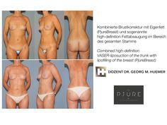 Fettabsaugung kombiniert mit Eigenfettvergrößerung der Brust Operation, Liposuction, Swimwear, Wels