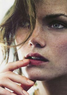 freckles are always in.