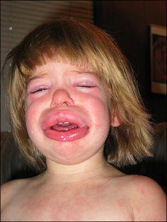 Benadryl for swelling lips