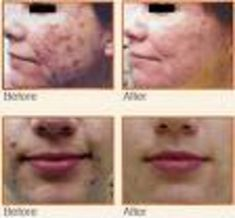 10 Best Fractional Laser Therapy (1540 Laser) images in 2012