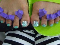Tiffany Blue Toenails Glitter Zebra Stripes