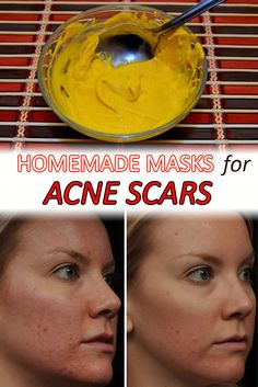 Homemade masks for acne scars - WifeMommyWoman
