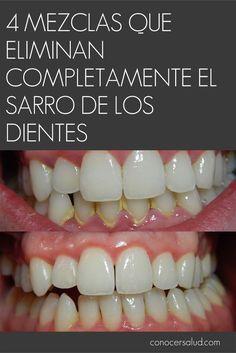4 mezclas que eliminan completamente el sarro de los dientes #salud