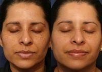 Ensure Complete Betterment From Vitiligo Spots with Benoquin Cream