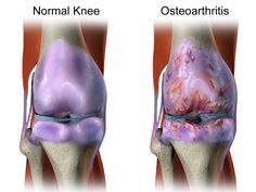 normal knee and osteoarthritic knee