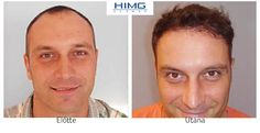 Hair Transplantation Before After photos. Hair Transplant at the best quality for a reasonable price! Before After Photo, Hair Transplant, Hair Loss, March, Women, Seo, Gift, Photos, Photo Illustration