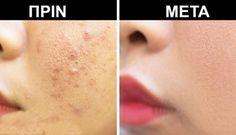 What is a blind pimple? It refers to acne which has developed under the skin's surface. Blind pimple is not noticeable from a distance but you can feel the lump. It is generally caused by a cyst or nodule. Foot Remedies, Hair Remedies, Vicks Vaporub, Blind Pimple, Beauty Tips For Girls, Circulation Sanguine, Face Scrub Homemade, Pores, Ingrown Hair