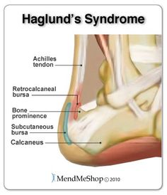Haglund's Syndrome - inflammation in the Achilles tendon and retrocalcaneal bursa.