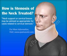 Stenosis of the neck is narrowing of the canal in the neck region of the spine (cervical spine). It is also known as cervical stenosis. Know the causes, symptoms, treatment and exercises for stenosis of the neck. Spinal Stenosis Treatment, Cervical Spinal Stenosis, Upper Back Pain, Back Exercises, Neck Pain, Fibromyalgia, Healthy Tips, Health And Wellness, Massage
