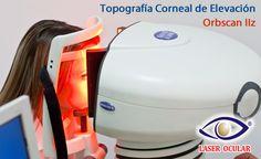 Topografía corneal Orbscan