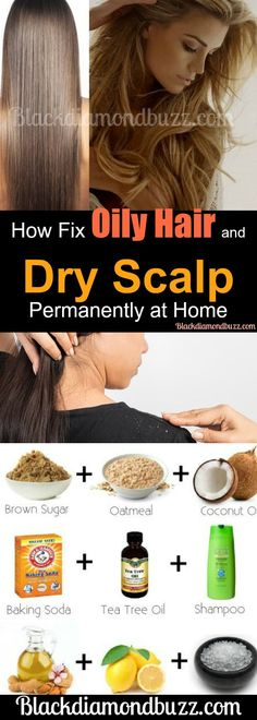 Oily Hair and Dry Scalp Treatment - How to get rid of  greasy hair quick  and fix your dry scalp overnight. Try these  best home remedies  with no side effects. #hair #hairstyle #oilyhair