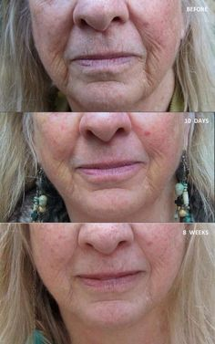 Nerium works!  www.debshaidle.nerium.com ask me about how to get started on this amazing cream!