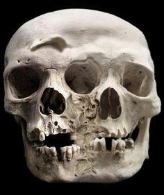 dea9cb1a1c09c3b4b7bbeb9ad5e76812--mutter-museum-philadelphia.jpg (525×627)