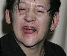 Celebrities With Horrible Teeth