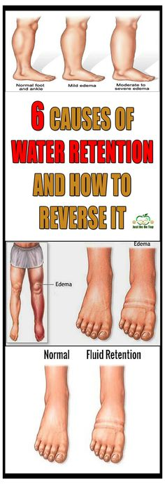 Edema or water retention is a process of liquids accumulation in the body, especially in the tissues, cavities and in the circulatory system and as a result of it swelling all over the body appears. The swelling is mostly visible on the ankles, legs, feet or legs.