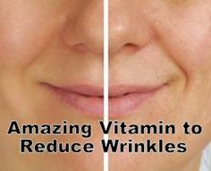 Wrinkles come due to the absence of skin elasticity and moisture. Wrinkles may happen in face, hands or any other places due to aging, pollution, Sun exposure, smoking or the drastic weight loss. You may either single out the cause for your wrinkles or change some of your dietary and lifestyle habits to prevent further wrinkles as well as getting rid of those which are already present there on your skin.