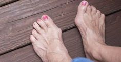 Foot Exercises That Could Prevent Expensive Bunion Surgery