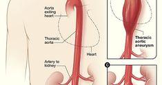 एबडमनल एऑरटक एनयरजम (Abdominal aortic aneurysm)  कय ह य एबडमनल एऑरटक एनयरजम ? और इसक लकषण कय ह ?  एबडमनल एऑरटक एनयरजम एक पट महधमन धमनवसफर परमख पत क नचल हसस म एक बढ हए कषतर ह ज शरर (महधमन) क रकत क आपरत करत ह महधमन आपक सन और पट क कदर क मधयम स आपक दल स चलत ह  महधमन शरर म सबस बड रकत वहक ह इसलए एक टट हआ पट महधमन धमनवसफर जवन-धमक रकतसरव क करण बन सकत ह  लकषण कय ह ?  पट क महधमन धमनवसफर अकसर लकषण क बन धर-धर बढत ह जसस उनक पत लगन मशकल ह जत ह कछ एनयरजम कभ भ फटत नह ह और यह छट रहत ह  यद आपक पस एक बड पट… Louboutin Pumps, Christian Louboutin, Heart Arteries