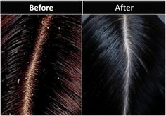 How to Get Rid Of Dandruff Permanently