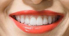 Diş Etinin Kanamasının Sebebi ve Tedavileri - http://www.tnoz.com/dis-etinin-kanamasinin-sebebi-ve-tedavileri-59082/