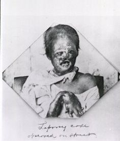 A leprosy patient from 1899