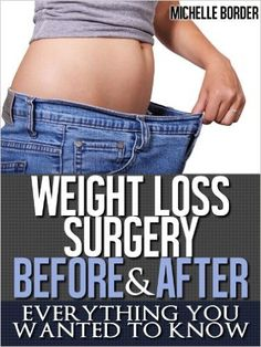 Weight Loss Surgery - Everything You Wanted To Know - Before and After - Kindle edition by Michell Border. Health, Fitness & Dieting Kindle eBooks.