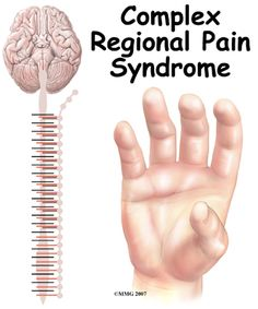 CRPS/RSD listed as more painful than ebola virus. More painful than cancer.