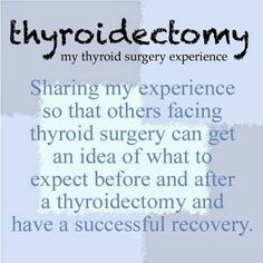 What should you expect if you are having a thyroidectomy?