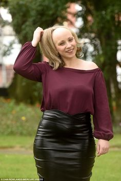 Nicola Phelan, 28, from Leeds, had suffered with alopecia since she was five. Hypnotherapy to help her lose weight unexpectedly made her feel more confident about showing her bald head