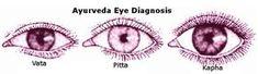 Ayurveda eye diagnosis