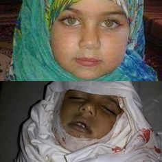 Syrian Children Before & After (Syria, Shaam) #Girl #Muslim #People #Shuhada