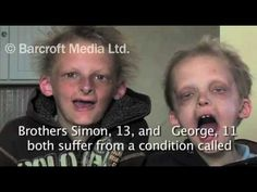 Hypohidrotic Ectodermal Dysplasia (HED), an extremely rare condition also known as 'vampirism' that only affects 7,000 worldwide