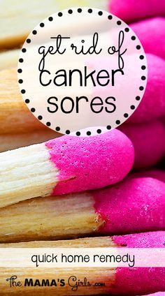 Get rid of canker sores quickly! Have you ever bitten the inside of your mouth/cheek...and then it turns into a canker sore? They can sometimes take a week to heal and they're so painful!