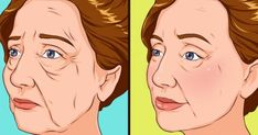 10 Ways to Get Rid of Sagging Face and Neck Skin. According to statistics posted by the International Society of Aesthetic Plastic Surgery, in 17 milli. Sagging Face, Massage Facial, Double Menton, Vitamin A, Facial Muscles, Facial Exercises, Les Rides, Improve Blood Circulation, Loose Skin