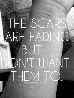 I don't. I don't want the memories to fade. I did this to myself for a reason & so they should stay for that reason...