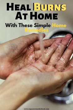 Heal Burns At Home With These Simple Home Remedies Organic Home Remedies For Bronchitis, Home Remedies For Burns, Asthma Remedies, Top 10 Home Remedies, Cold Home Remedies, Herbal Remedies, Health Remedies, Natural Remedies