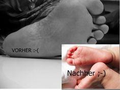 Füße ohne Hornhaut | Frag Mutti