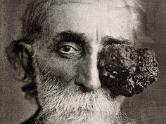 Eye tumor - Until the late cancerous growths were often left untreated until they were very advanced, as shown in this 1906 photograph. Surgery was a last, desperate resort - after eye patches no longer sufficed. Basal Cell Carcinoma, Human Oddities, Creepy Pictures, Best Doctors, Vintage Medical, Gifts For Photographers, Medical History, Medical Conditions, Travel