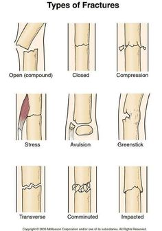 Types of bones fractures. Open, closed, compression, stress, avulsion, greenstick, transverse, comminuted, and impacted. Remember that for fractured bones, we recommend the use of a SAM Splint, a first aid item that can fit in your first aid bag; learn about this item here: http://insidefirstaid.com/personal/first-aid-kit/splinting-bone-fractures-with-a-sam-splint #emt #ems #nurse #medical #bones #broken #bones #fractures #sam #splint