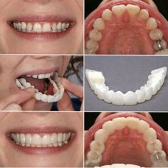 Premium occlusal denture set Teeth Implants, Dental Implants, Dental Hygienist, Dental Surgery, Nose Surgery, Perfect Smile Teeth, Snap On Smile, Teeth Pictures, Dental Veneers