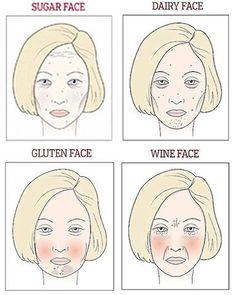 砂糖顔:目元や額にシワが出やすいやつれた顔。砂糖の摂り過ぎにより肌が糖化し、コラーゲンが劣化。痛みを伴う吹き出物ができ、肌は薄くグレイッシュに。たるみやシワに見舞われやすくなる。 乳製品顔:乳糖に対する不耐性が、腫れや炎症を引き起こすのがこのタイプ。目の下にクマやたるみぐまができやすいのも特長で、ホルモンバランスへの影響であご周りに吹き出物ができやすい。 グルテン顔:頬が赤みを帯びて膨みがちで、あご周りに色素沈着やシミがでやすい。グルテンが炎症反応や腫れを引き起こすのが原因。 ワイン顔:頬や鼻周りの赤み、シワや深いほうれい線が特長。アルコールによる臓器への悪影響だけでなく、脱水症状も問題。セレブも驚く「砂糖顔、乳製品顔、グルテン顔、ワイン顔」分析   こちらハリウッド美容番