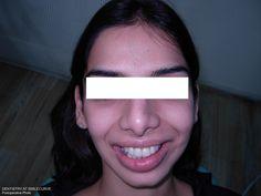 ceramic veneers/laminates smiledesign facelift teeth alignment