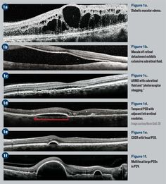 Optometry has widely adopted optical coherence tomography (OCT) as a mainstay in diagnosing and managing ocular disease since its advent in the 1990s. It provides a rapid, noninvasive, and detailed